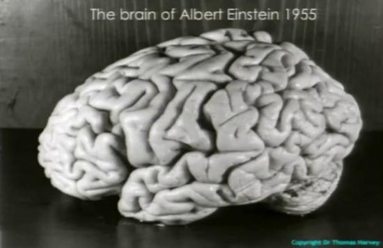 Einsteins Gehirn noch im Ganzen (Wikimedia Commons)