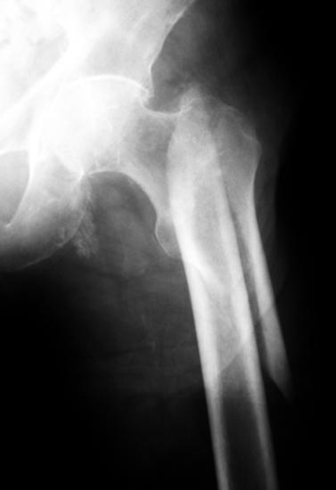 Eine der wenigen tatsächlichen Verletzungen McIlroys: Eine Oberschenkelfraktur (THWZ / wikimedia commons)