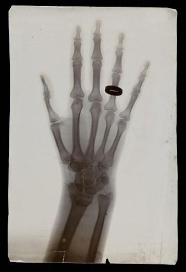 Röntgenbild einer Hand mit Ring am Finger (Wellcome Images / wikimedia commons)
