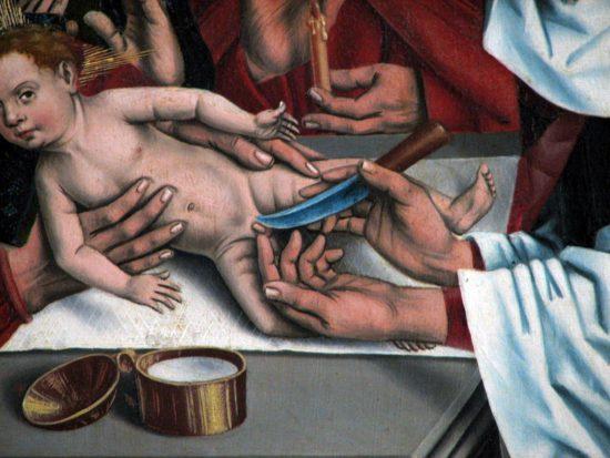 Die Beschneidung Christi (Friedrich Herlin / 1466 / wikimedia commons)